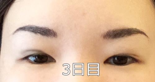 アートメイクダウンタイム3日目