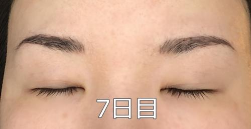 アートメイクダウンタイム7日目