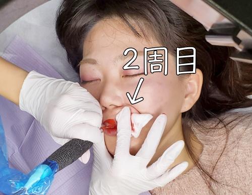 リップアートメイク体験口コミ-施術3